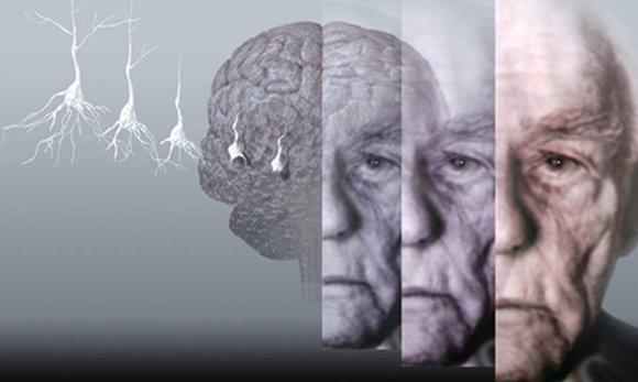 如何判斷家裡老人是否得老年癡呆?要怎樣預防家裡老人得老年癡呆?